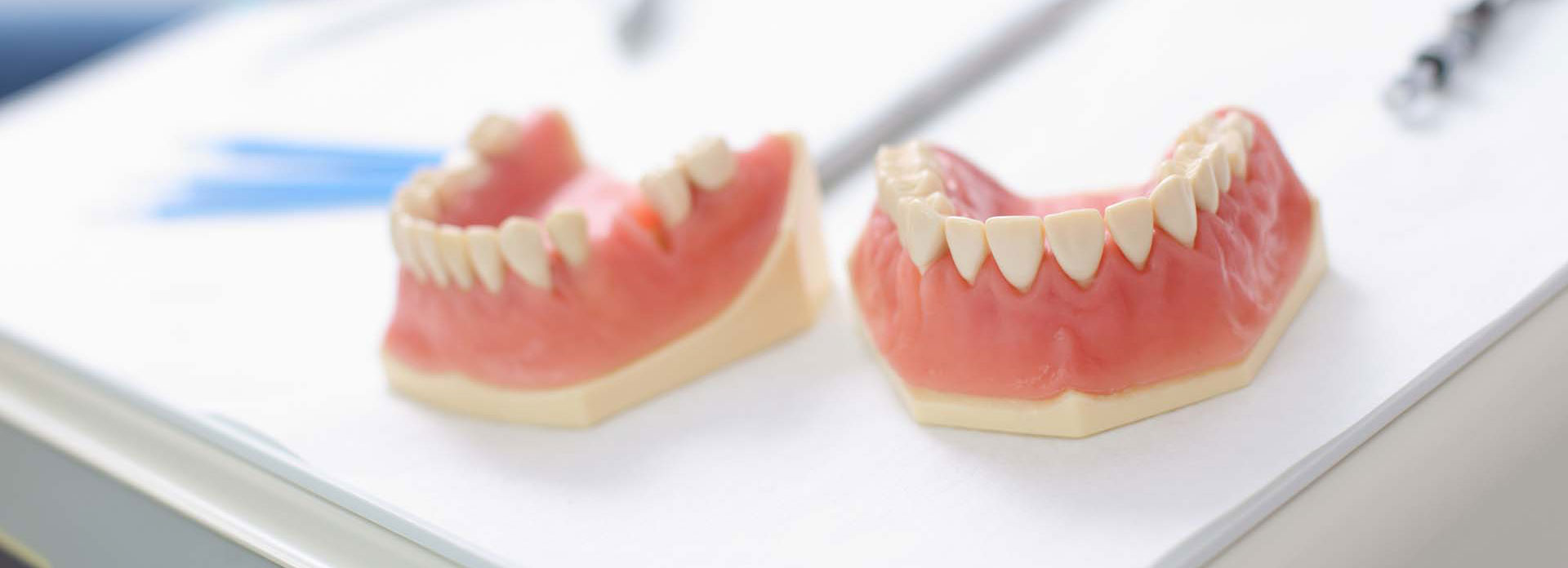 Dental jaw model on a dentist table