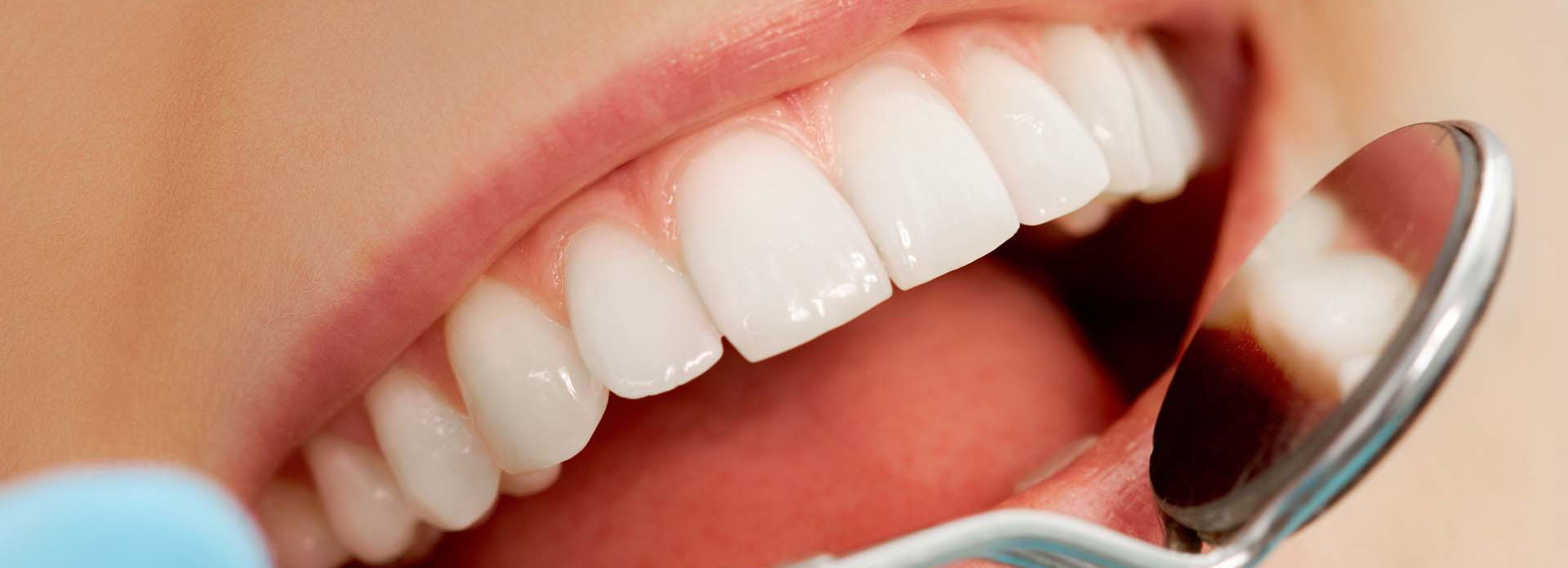 teeth of a smiling woman