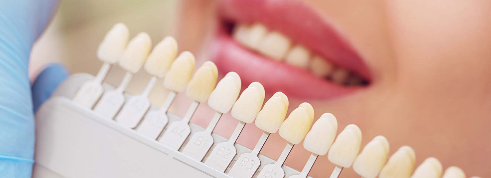 A dental staff holding a tooth color matching palettes